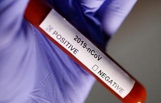 İspanya'da Corona Virüs'ten Ölenlerin...