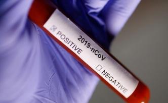 İspanya'da Corona Virüs'ten Ölenlerin Sayısı 84'e Yükseldi