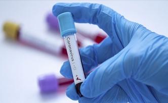KKTC'de Bir Alman Kadın Turistte Yeni Tip Koronavirüs Tespit Edildi
