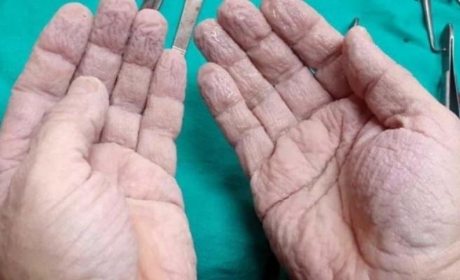 Ameliyat Sonrası Ellerini Paylaşan Cerrah Sosyal Medyayı Salladı